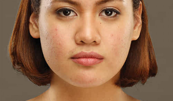 """Maxi-Peel Encourages Women with Troubled Skin: """"'Wag Mong Isuko Ang Laban!"""""""